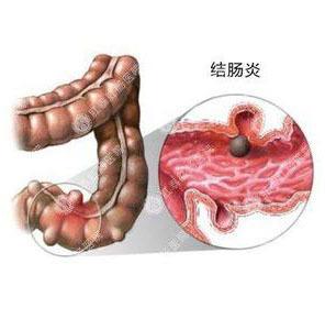 慢性糜烂性结肠炎有那些阵状